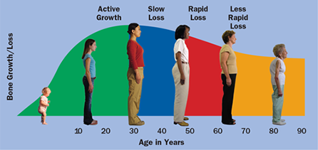 Image showing women at different ages and how bone growth slows down as we age